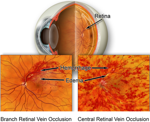 Retinal Vein Occulusion
